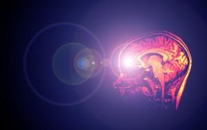 brain15_0